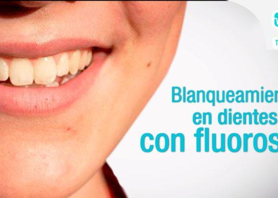 Blanqueamiento de dientes con fluorosis