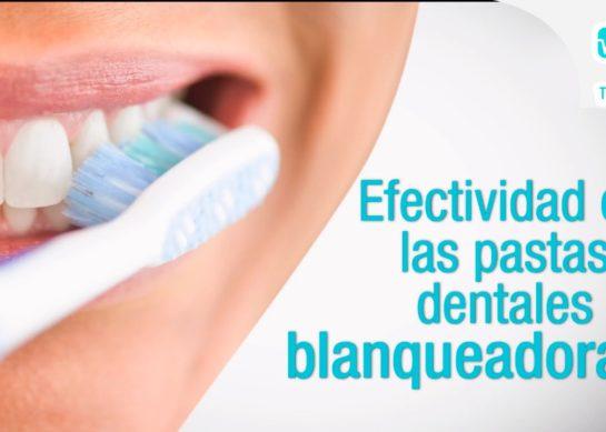 Efectividad de las pastas dentales blanqueadoras