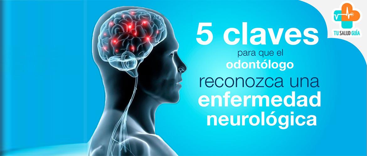 5 claves para que el odontologo reconozca una enfermedad neurologica
