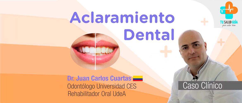 CASO CLÍNICO: Aclaramiento Dental
