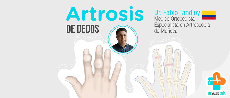 Artrosis de dedos