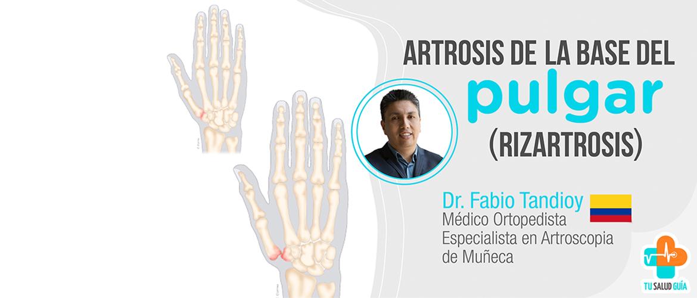 Artrosis de la base del pulgar (rizartrosis)