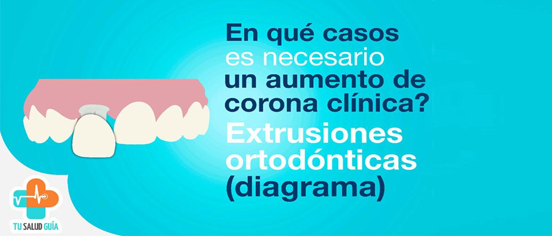 Aumento de corona clínica, extrusiones ortodónticas