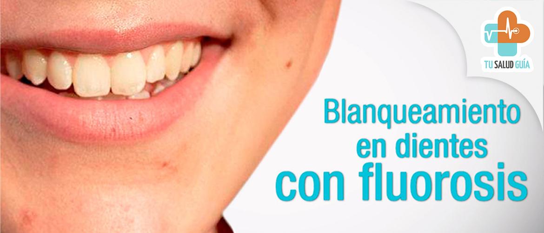 Blanqueamiento en dientes con fluorosis