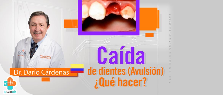 Caída o Avulsión de dientes