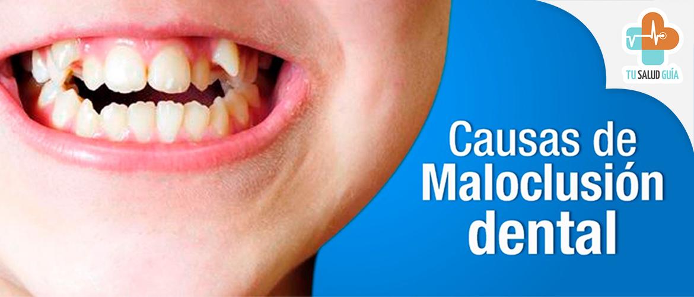 Causas de maloclusion dental