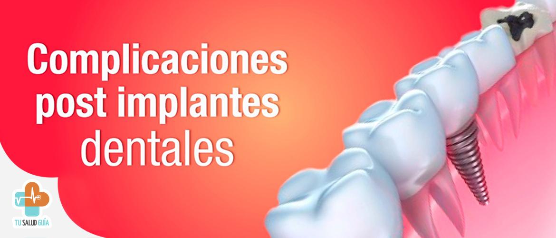 Complicaciones post implantes dentales