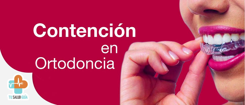 Contención de Ortodoncia