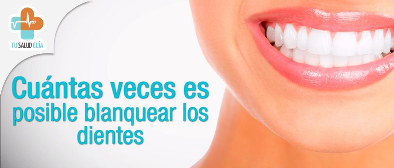 Cuantas veces es posible blanquearse los dientes
