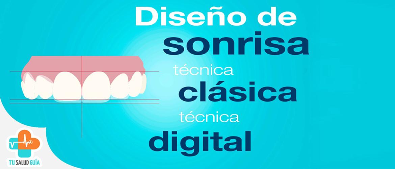 Diseño de sonrisa, técnica clásica y digital