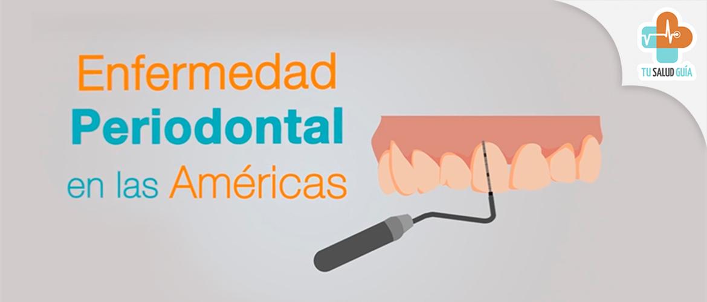 Enfermedad periodontal en las Américas