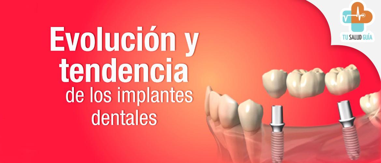 Evolucion y tendencia a los implantes dentales