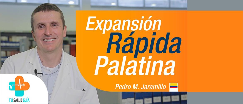 Expansión Rapida Palatina