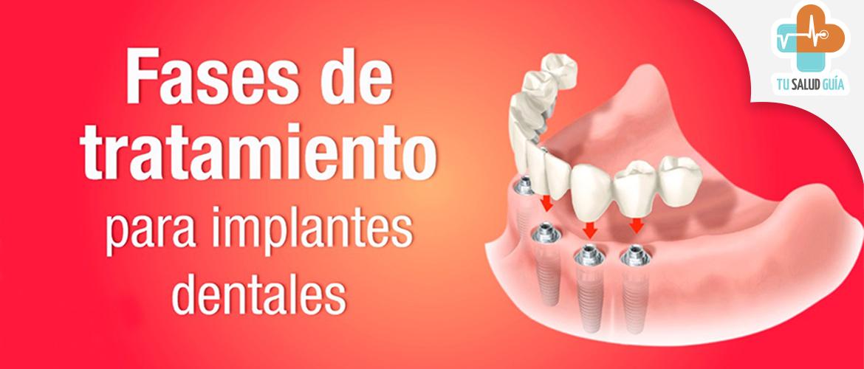 Fases de tratamiento para implantes dentales