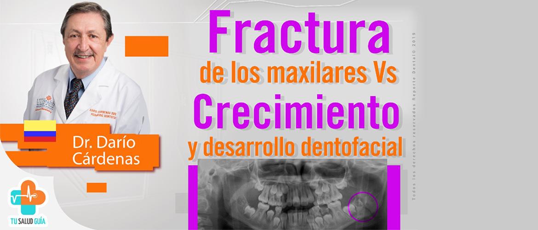 Fractura Vs crecimiento de los maxilares