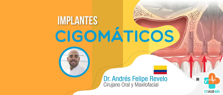 Implantes cigomáticos