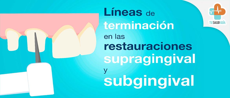 Líneas de terminación en las restauraciones supragingival y subgingival