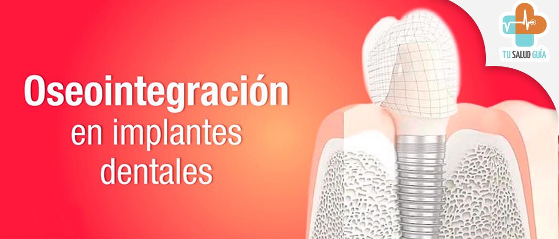 Oseointegracion en implantes dentales