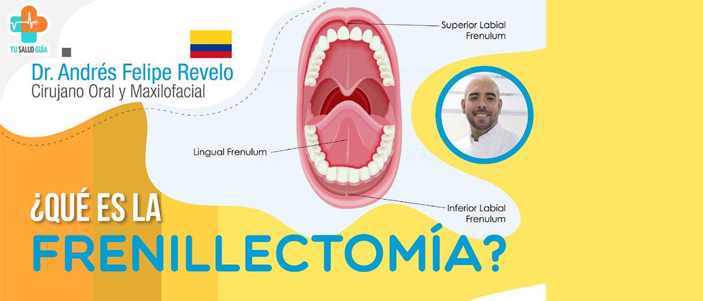 ¿Qué es la frenillectomía?