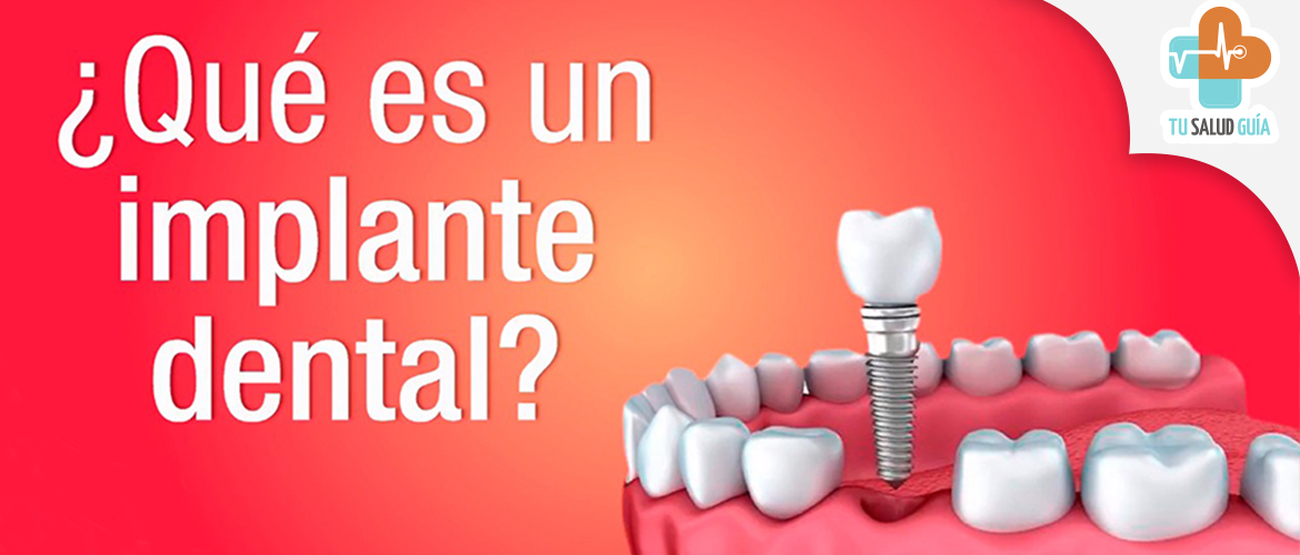 Que es un implante dental