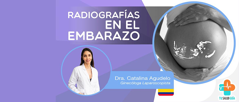 Radiografias en el embarazo