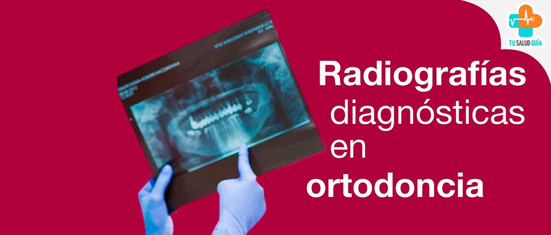 Radiografías diagnósticas en Ortodoncia