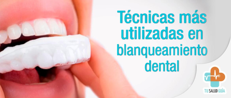Tecnicas mas utilizadas en blanqueamiento dental