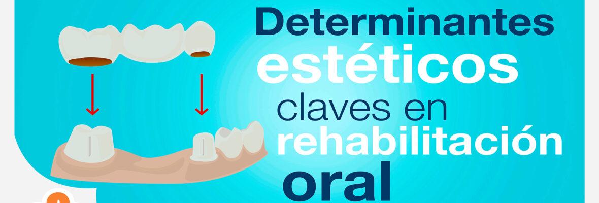 Determinantes estéticos claves en rehabilitación oral