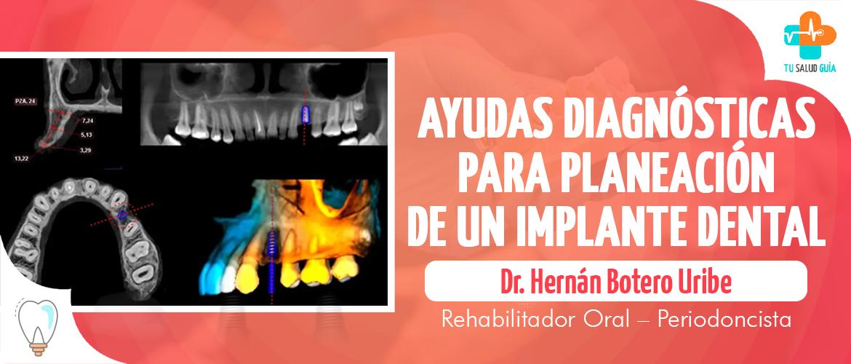 Ayudas diagnósticas para la planeación de un implante dental