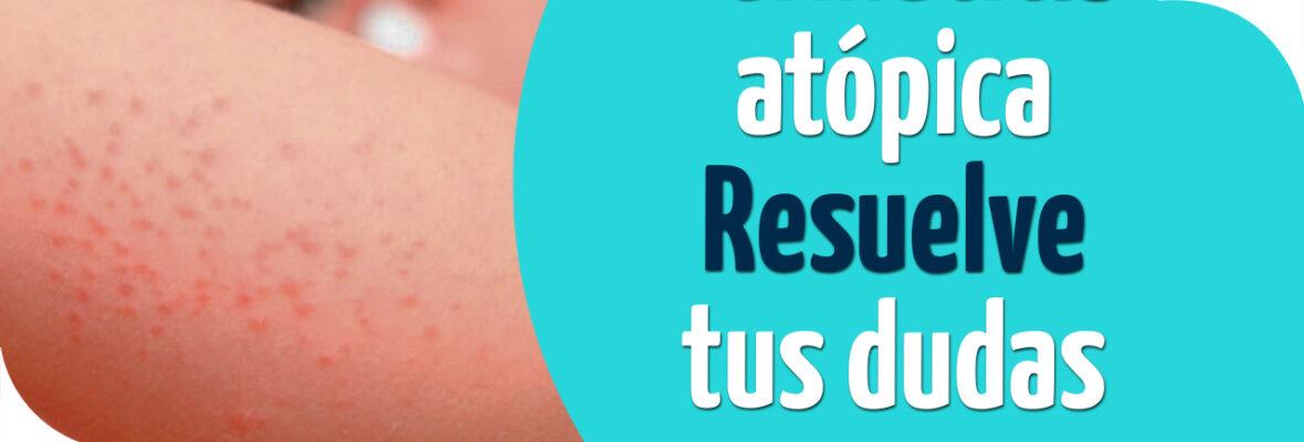 Dermatitis atópica – Resuelve tus dudas