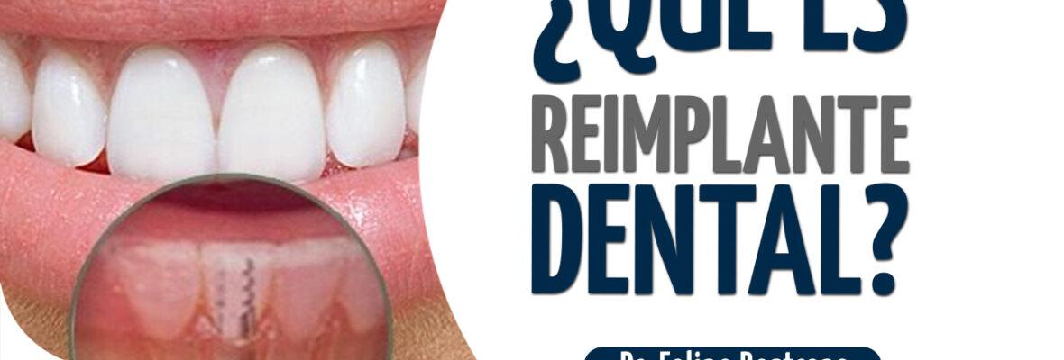¿Qué es reimplante dental?